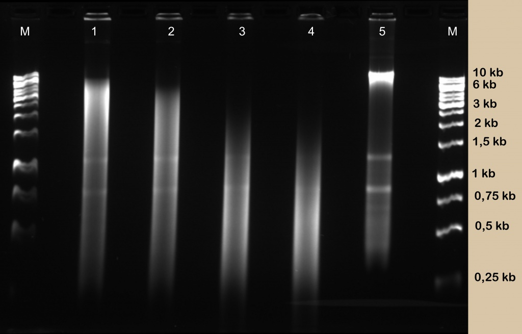 Diagenode_yeast_DNA.jpg